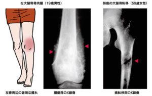 悪性骨腫瘍
