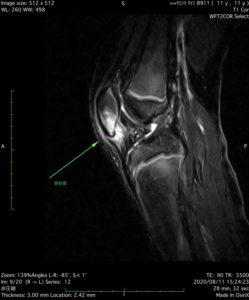 膝蓋骨剥離骨折