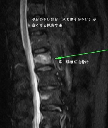 第1腰椎圧迫骨折MRI画像